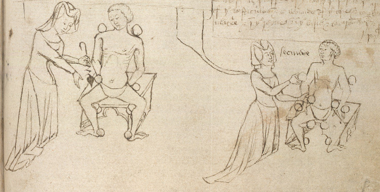 Female physician blood-letting | British Libtrary British Library Sloane 6 f. 177v